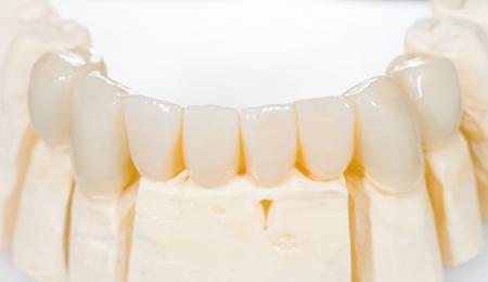 32603589 - dental ceramic bridge on isolated white