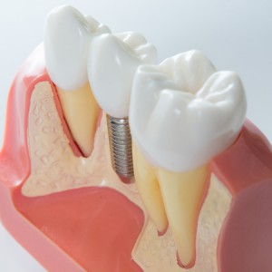 35280970 - close up of a dental implant model. selective focus.